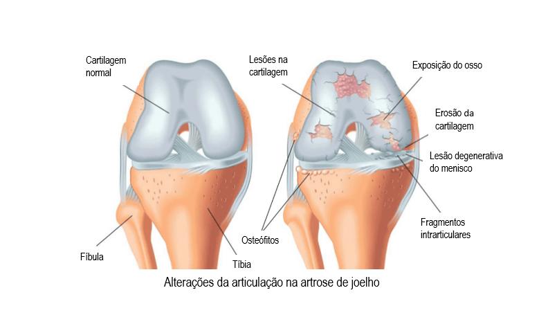 A artrose - Dr. Fernandes