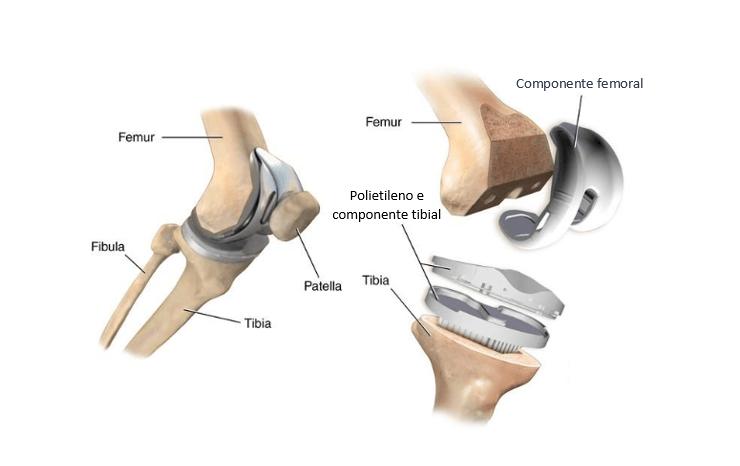 tratamento desgaste no joelho