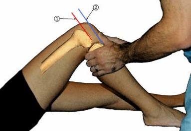 Exame físico do joelho