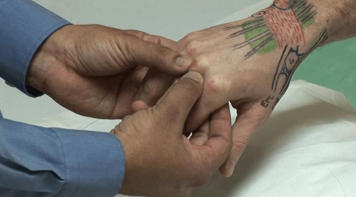 Exame físico da mão