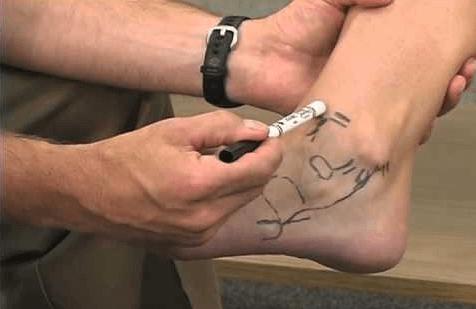 Exame físico do pé e tornozelo