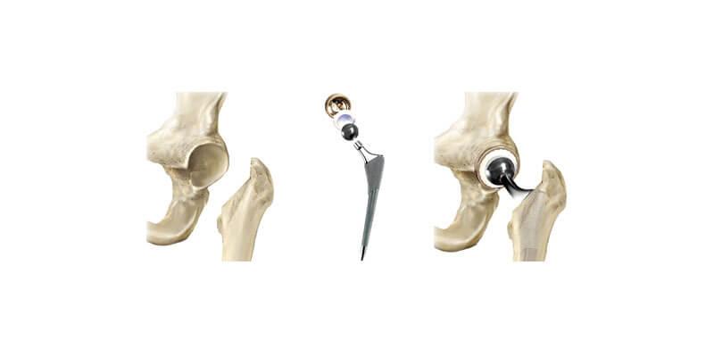 Passo a passo da prótese de quadril